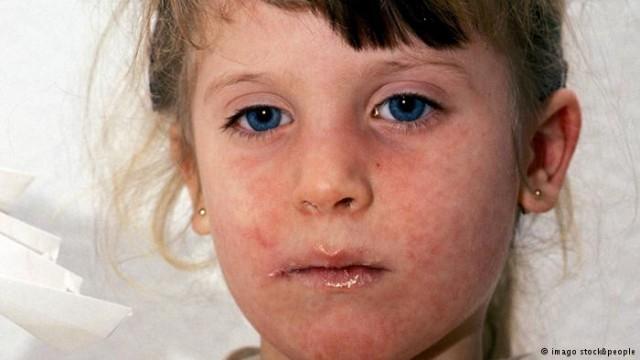 U KS epidemija ospica - u Srebreniku sporadični slučajevi