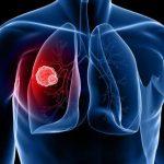 Povećan broj oboljelih od karcinoma pluća u TK